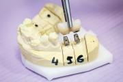 2 zbllokowane korony na implantach