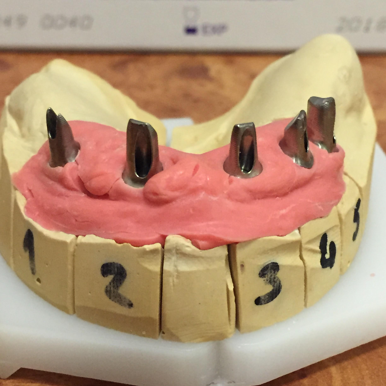 łączniki implantowe