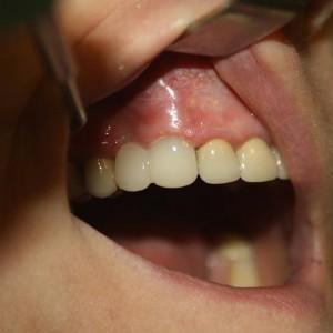 """Po 2 godzinach od oszlifowania Pacjent ma """"nowe ząbki"""" dzięki systemowi CEREC-bez wycisku na jednej wizycie!!"""