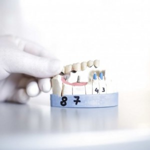 most kombinowany na implantach i na zębach
