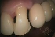 ząb nr 23 - destrukcja korony