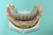 IMG 5094 180x120 - Proteza na 6 implantach